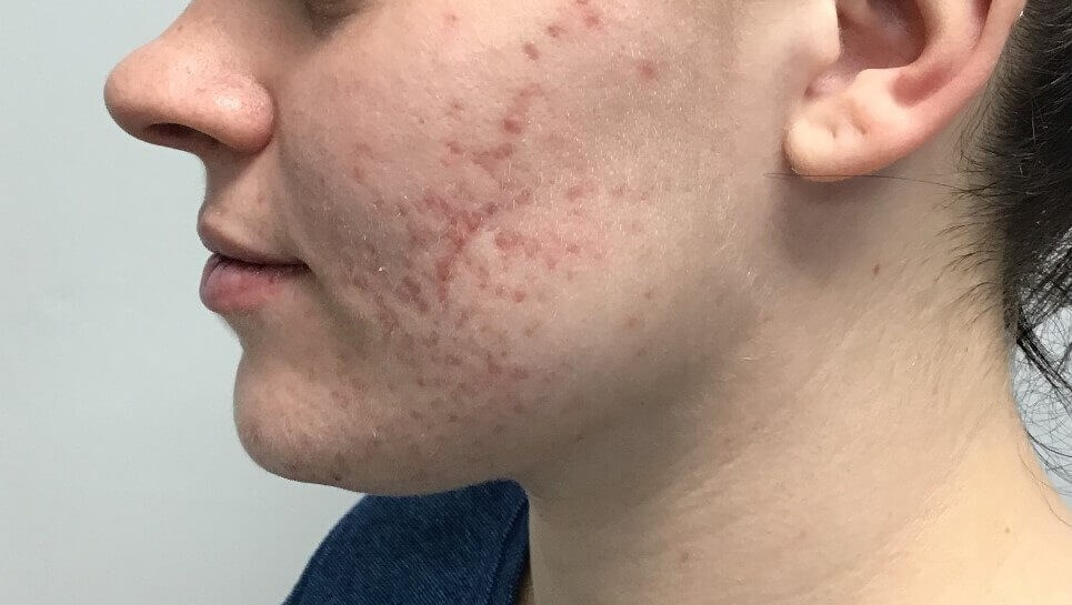 Microneedling Before and After Before