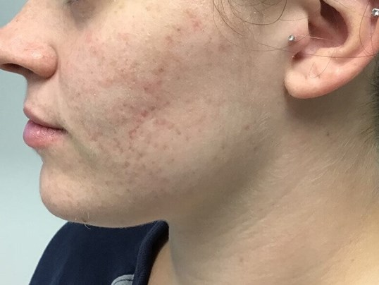 Microneedling Before and After After