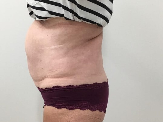 Emsculpt Before and After Before