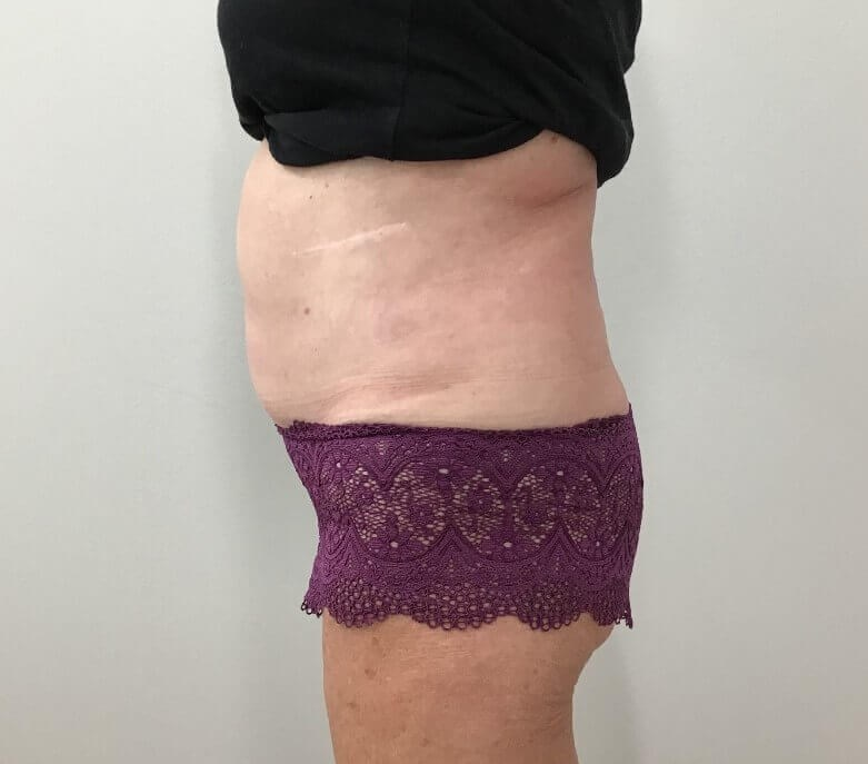 Emsculpt Before and After After