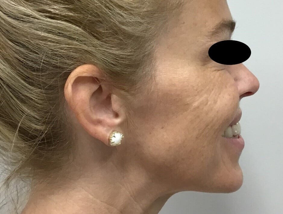 Xeomin & Restylane Lyft After