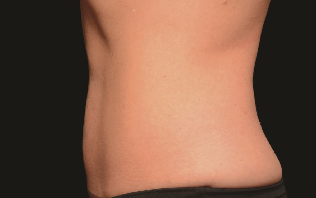 CoolSculpting - Abdomen After