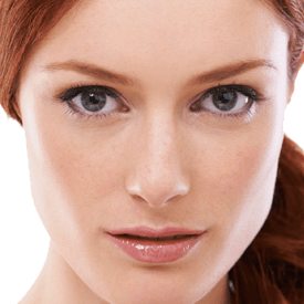 Rosacea Treatment Image